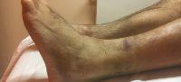 Typische Symptome am Sprunggelenk nach Supinationstrauma