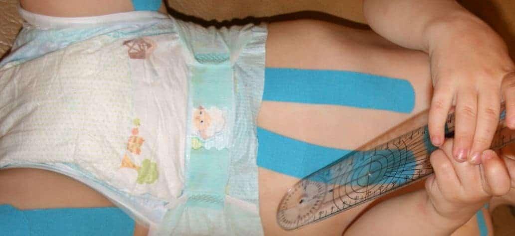 Baby mit Tape an Beinen und Bauch