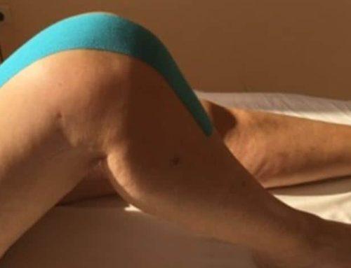 Bewegungsverbesserung durch Narbenbehandlung nach einer Knieendoprothesen-Operation