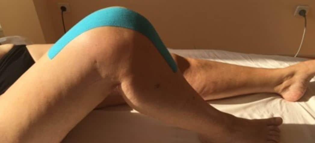 Patient mit Tape am Knie